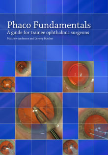 Picture of Phaco Fundamentals